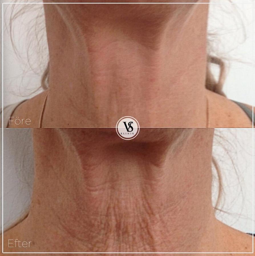åldrad hud uppstramning