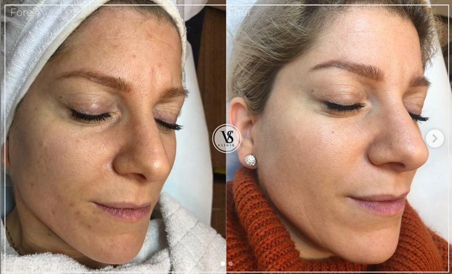 behandling av pigmentering